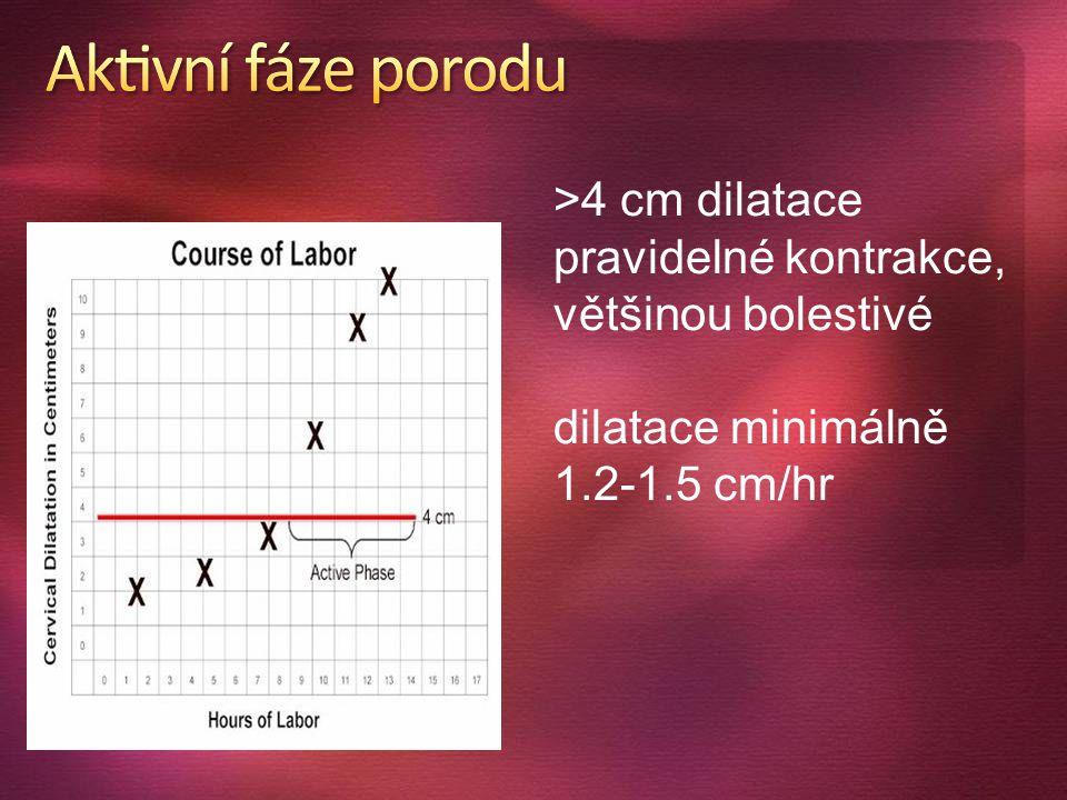 >4 cm dilatace pravidelné kontrakce, většinou bolestivé dilatace minimálně 1.2-1.5 cm/hr