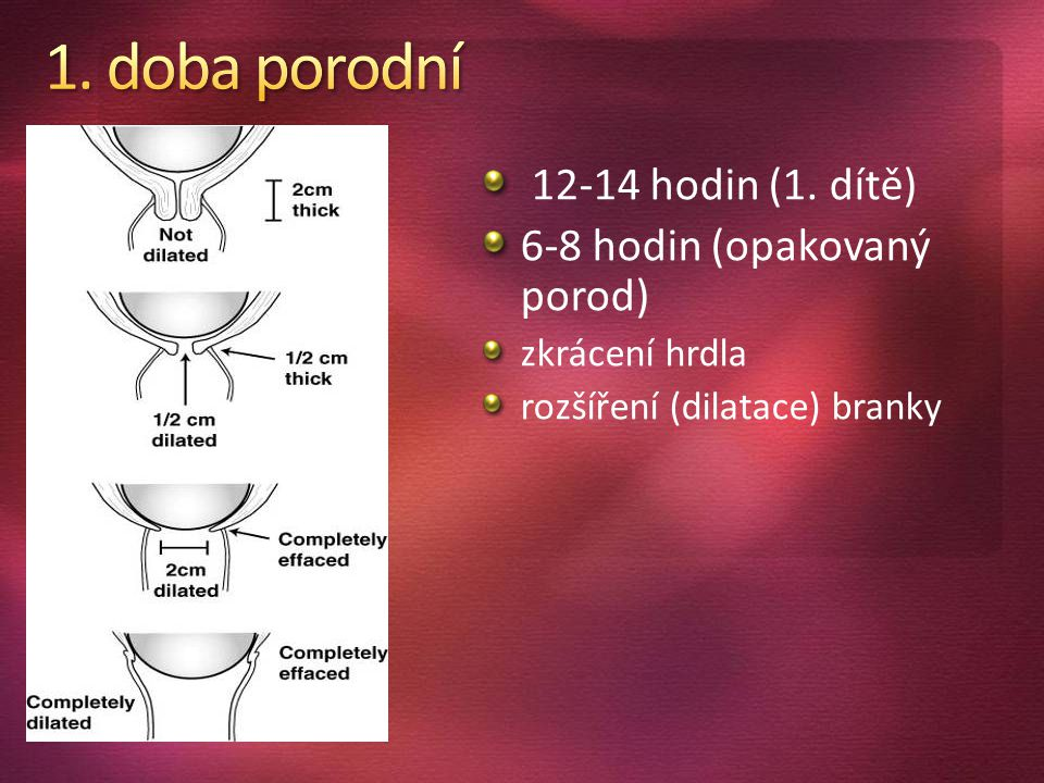 12-14 hodin (1. dítě) 6-8 hodin (opakovaný porod) zkrácení hrdla rozšíření (dilatace) branky