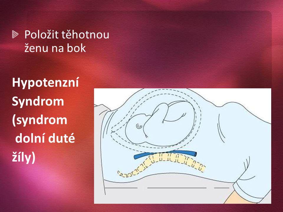 Položit těhotnou ženu na bok Hypotenzní Syndrom (syndrom dolní duté žíly)