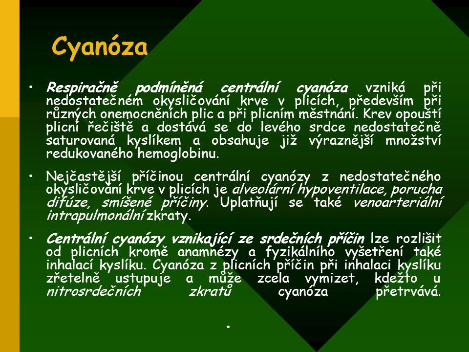 Cyanóza Respiračně podmíněná centrální cyanóza vzniká při nedostatečném okysličování krve v plicích, především při různých onemocněních plic a při pli