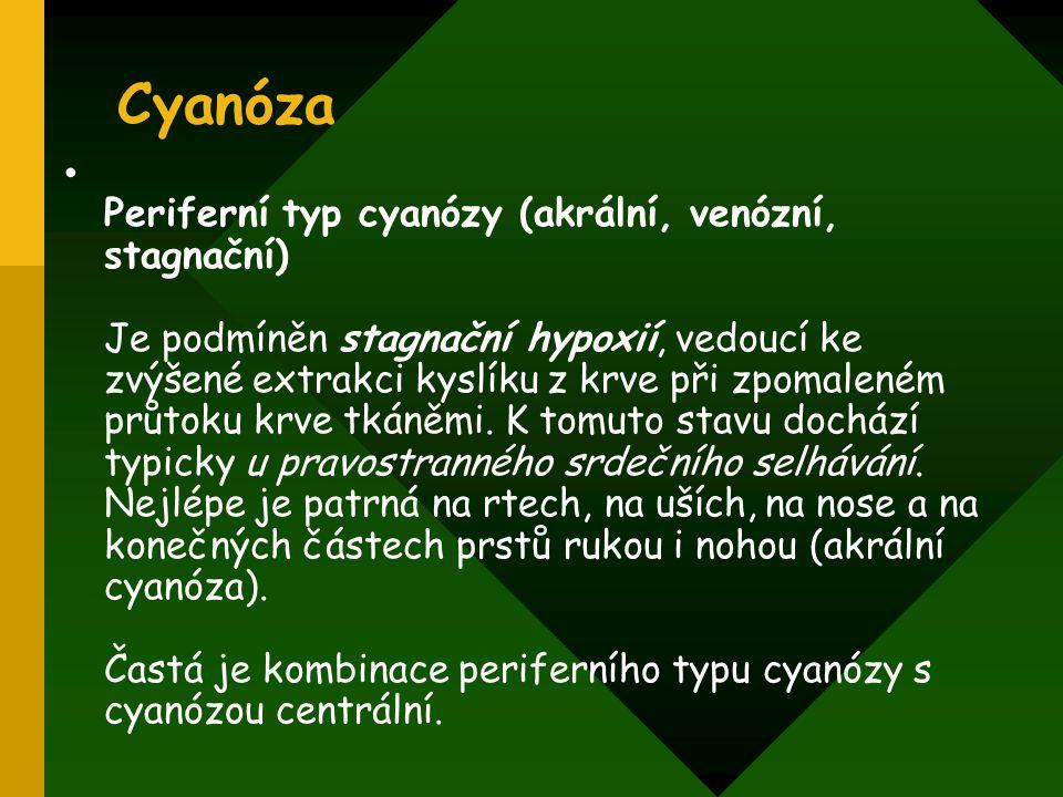Cyanóza Periferní typ cyanózy (akrální, venózní, stagnační) Je podmíněn stagnační hypoxií, vedoucí ke zvýšené extrakci kyslíku z krve při zpomaleném p
