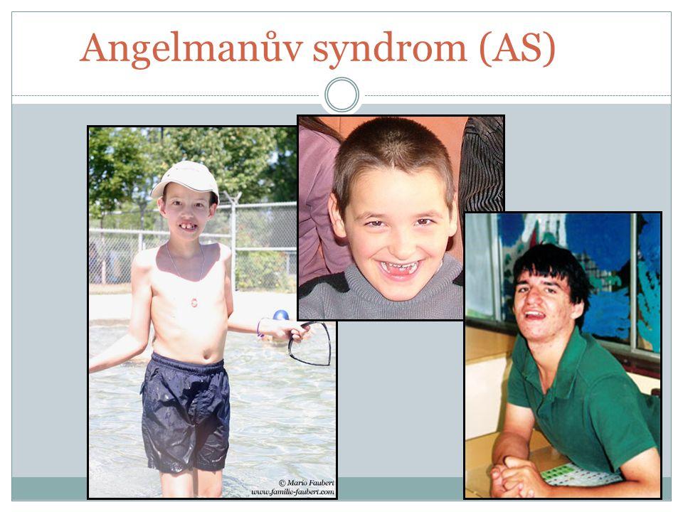 Angelmanův syndrom (AS)