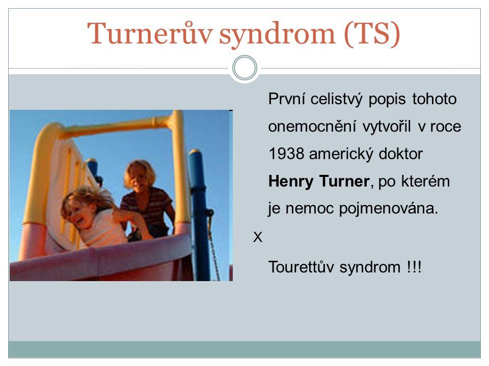 Turnerův syndrom (TS) První celistvý popis tohoto onemocnění vytvořil v roce 1938 americký doktor Henry Turner, po kterém je nemoc pojmenována. X Tour