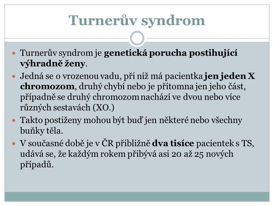 Turnerův syndrom Turnerův syndrom je genetická porucha postihující výhradně ženy. Jedná se o vrozenou vadu, při níž má pacientka jen jeden X chromozom
