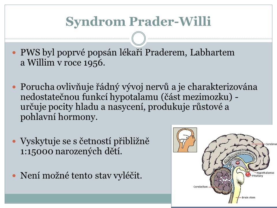 Syndrom Prader-Willi PWS byl poprvé popsán lékaři Praderem, Labhartem a Willim v roce 1956. Porucha ovlivňuje řádný vývoj nervů a je charakterizována
