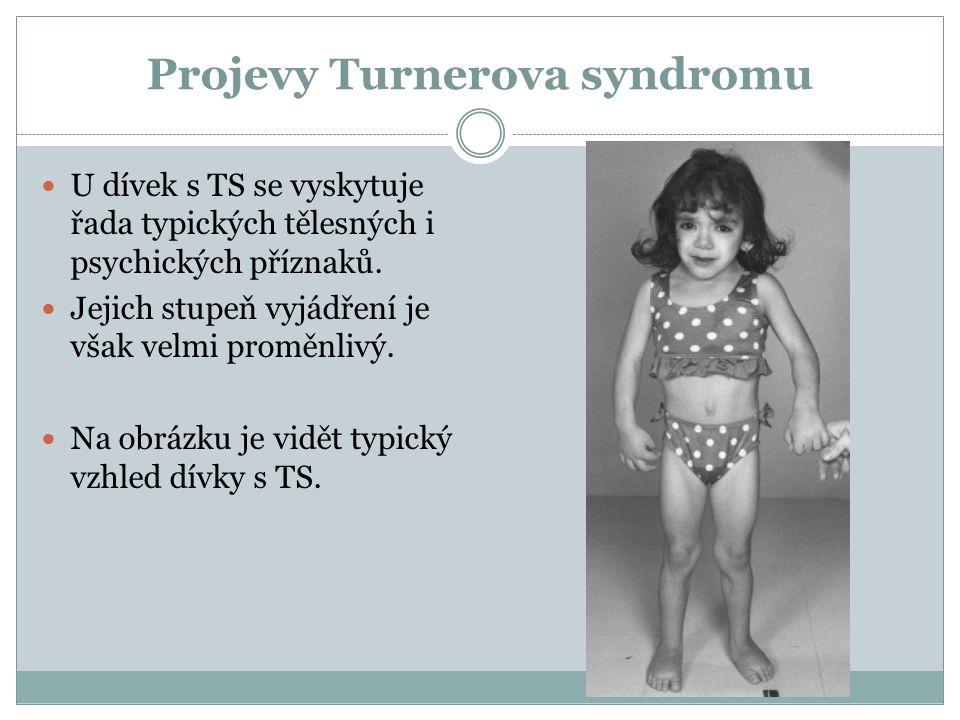 Projevy Turnerova syndromu U dívek s TS se vyskytuje řada typických tělesných i psychických příznaků. Jejich stupeň vyjádření je však velmi proměnlivý