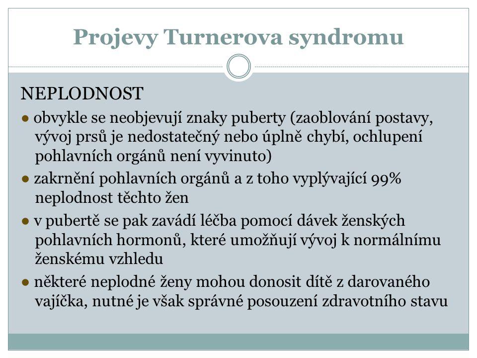 Projevy Turnerova syndromu NEPLODNOST ● obvykle se neobjevují znaky puberty (zaoblování postavy, vývoj prsů je nedostatečný nebo úplně chybí, ochlupen