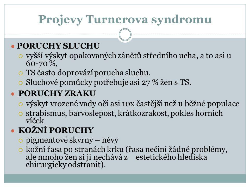 Projevy Turnerova syndromu ● PORUCHY SLUCHU  vyšší výskyt opakovaných zánětů středního ucha, a to asi u 60-70 %,  TS často doprovází porucha sluchu.