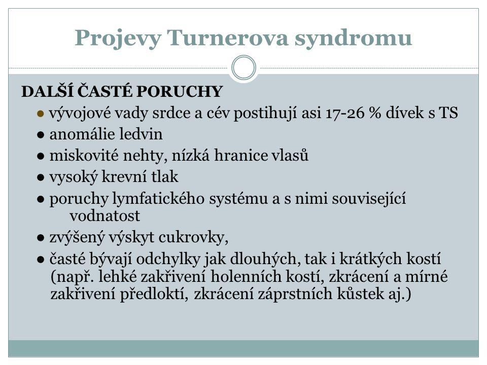 Projevy Turnerova syndromu DALŠÍ ČASTÉ PORUCHY ● vývojové vady srdce a cév postihují asi 17-26 % dívek s TS ● anomálie ledvin ● miskovité nehty, nízká