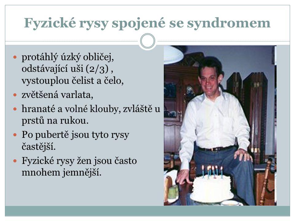 Fyzické rysy spojené se syndromem protáhlý úzký obličej, odstávající uši (2/3), vystouplou čelist a čelo, zvětšená varlata, hranaté a volné klouby, zv