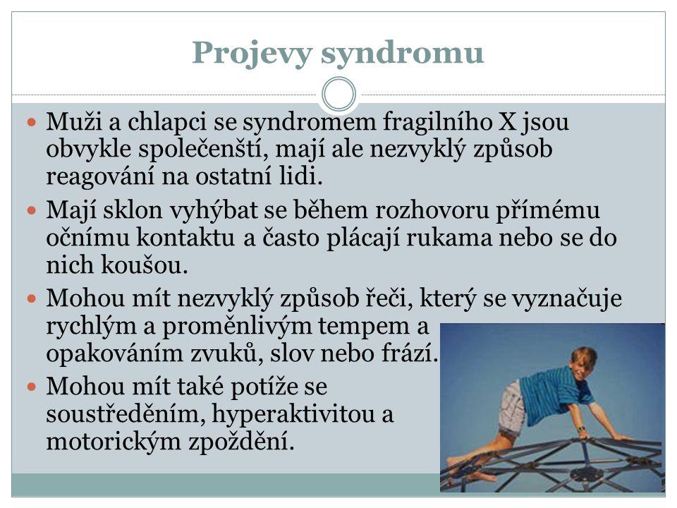 Projevy syndromu Muži a chlapci se syndromem fragilního X jsou obvykle společenští, mají ale nezvyklý způsob reagování na ostatní lidi. Mají sklon vyh