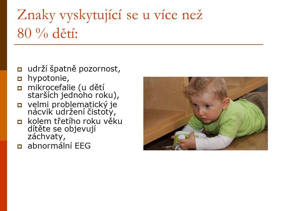 Znaky vyskytující se u více než 80 % dětí:  udrží špatně pozornost,  hypotonie,  mikrocefalie (u dětí starších jednoho roku),  velmi problematický