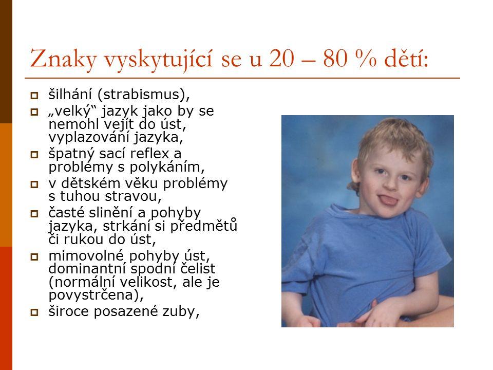 """Znaky vyskytující se u 20 – 80 % dětí:  šilhání (strabismus),  """"velký"""" jazyk jako by se nemohl vejít do úst, vyplazování jazyka,  špatný sací refle"""