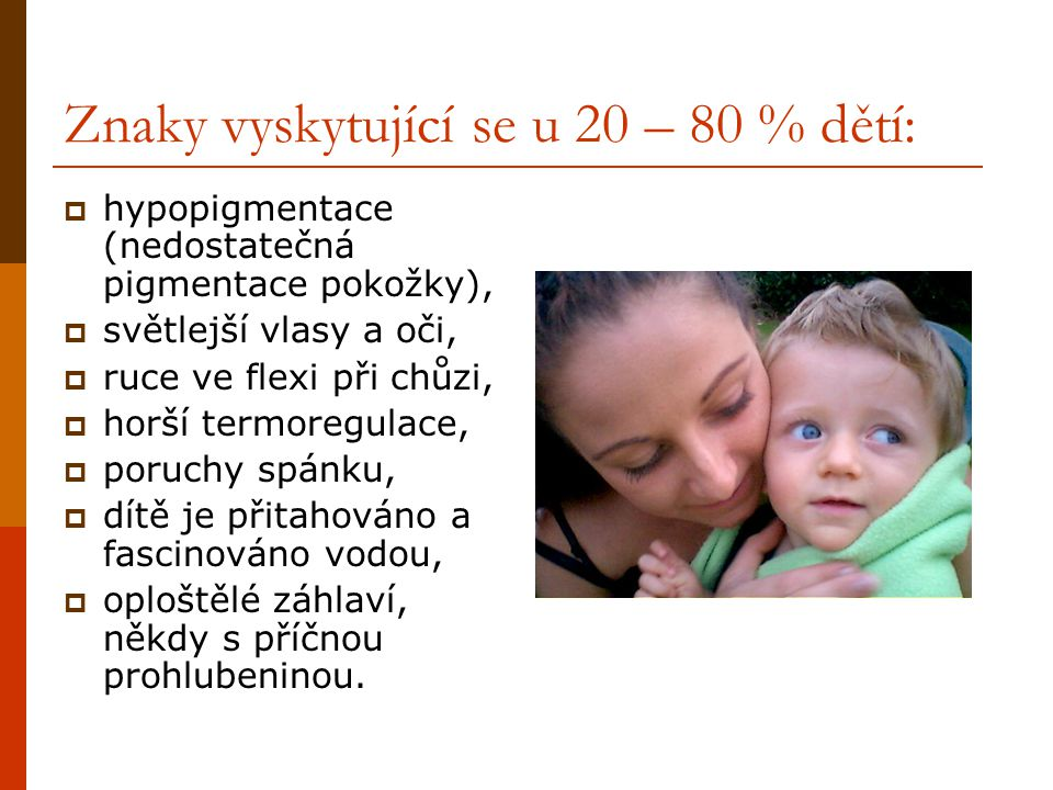 Znaky vyskytující se u 20 – 80 % dětí:  hypopigmentace (nedostatečná pigmentace pokožky),  světlejší vlasy a oči,  ruce ve flexi při chůzi,  horší
