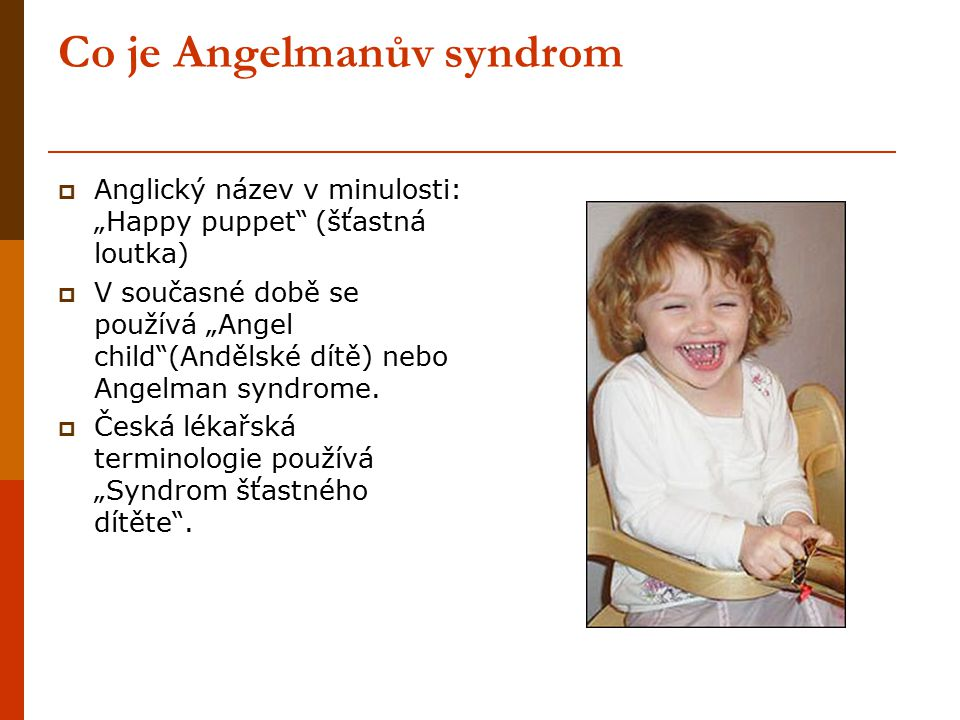 """Co je Angelmanův syndrom  Anglický název v minulosti: """"Happy puppet"""" (šťastná loutka)  V současné době se používá """"Angel child""""(Andělské dítě) nebo"""