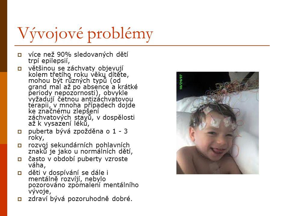 Vývojové problémy  více než 90% sledovaných dětí trpí epilepsií,  většinou se záchvaty objevují kolem třetího roku věku dítěte, mohou být různých ty