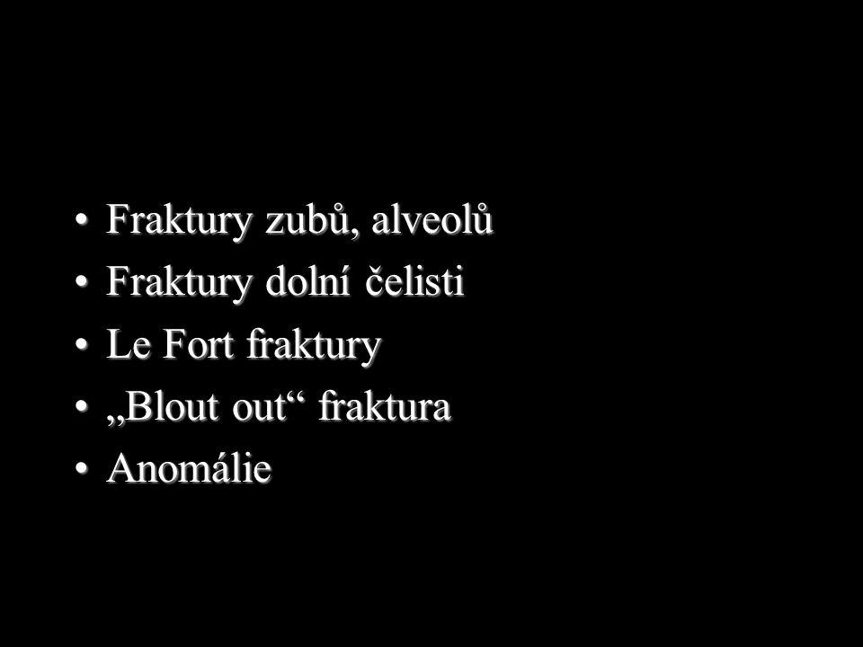 –Průběh fraktury: Maxilla Zygomatický výběžek Nosní kůstky Os ethmoidale Baze lebky LeFort III