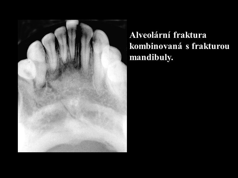Alveolární fraktura kombinovaná s frakturou mandibuly.