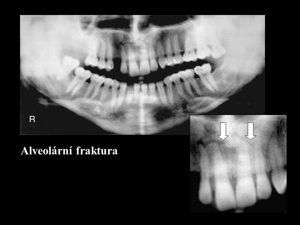 Alveolární fraktura