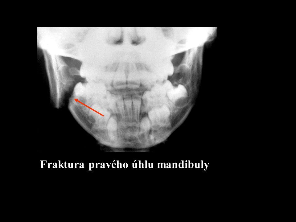 R Fraktura pravého úhlu mandibuly