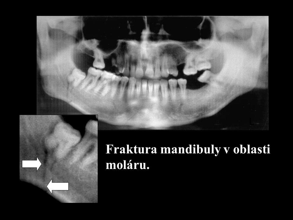 L Fraktura mandibuly v oblasti moláru.