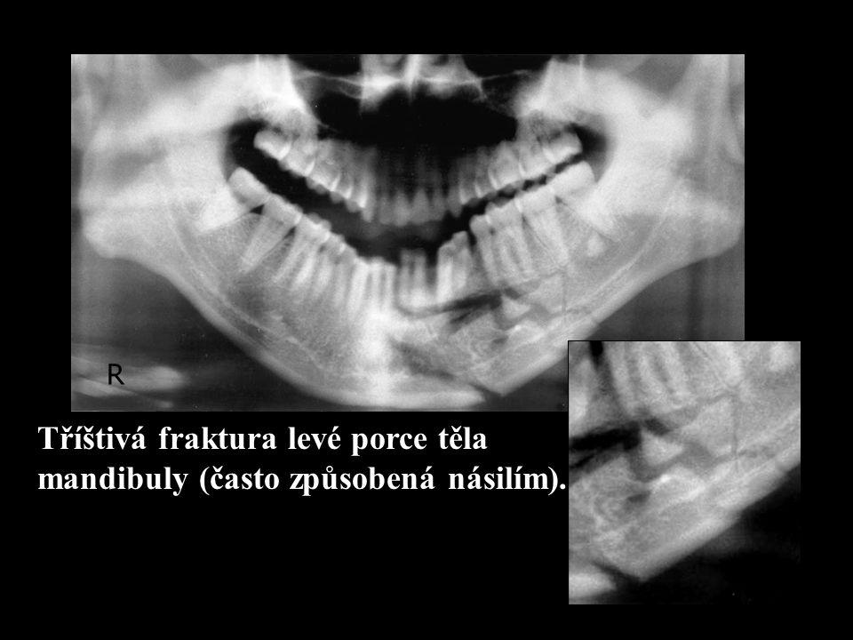 Tříštivá fraktura levé porce těla mandibuly (často způsobená násilím). R