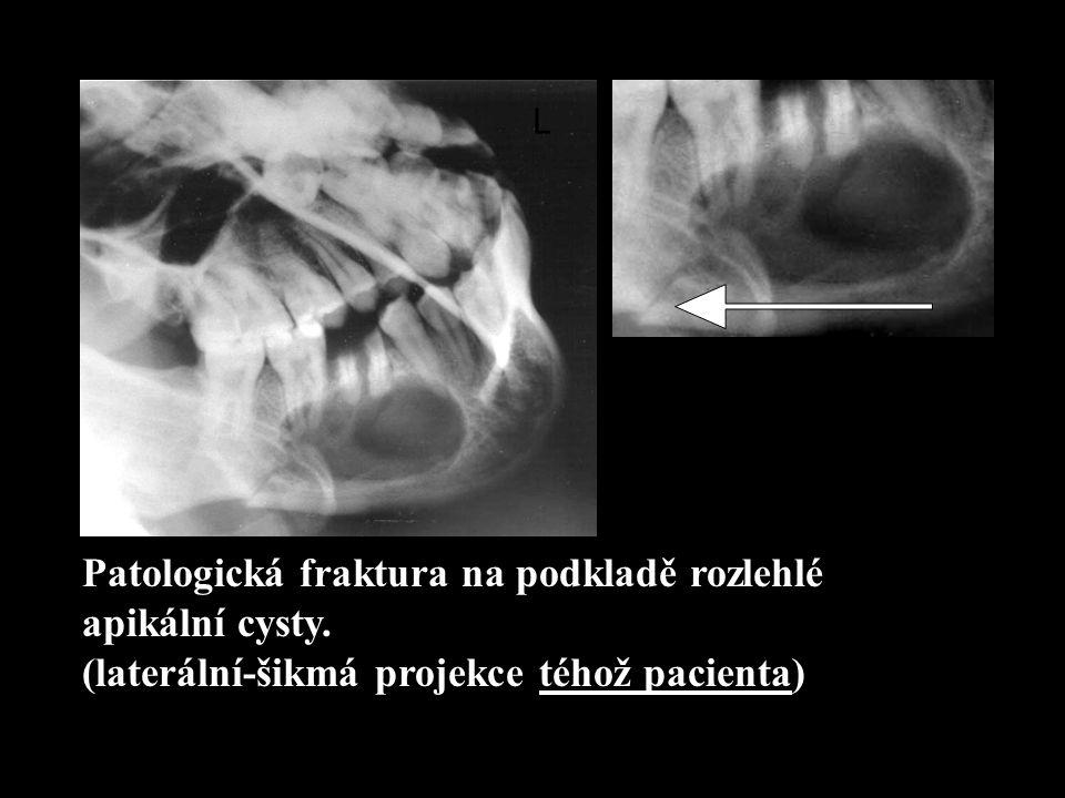 Patologická fraktura na podkladě rozlehlé apikální cysty. (laterální-šikmá projekce téhož pacienta) L