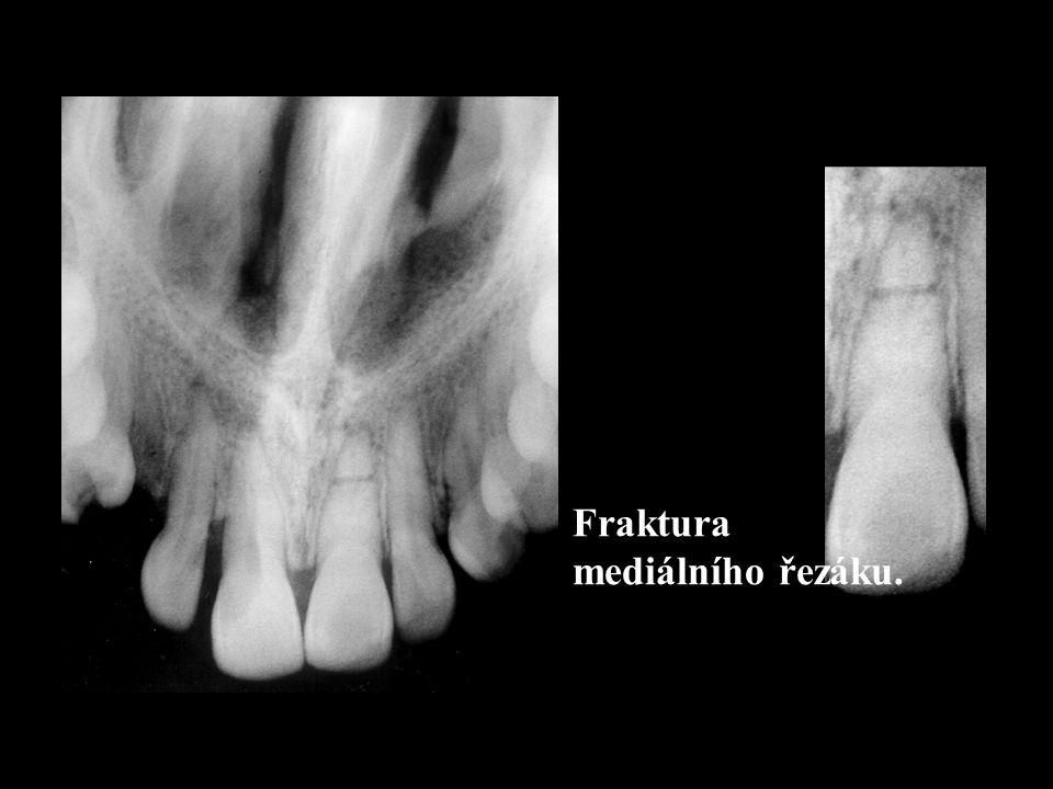 Radiologický nález: –Linie fraktury zahrnuje: Nazální apertura Spodní část maxily.