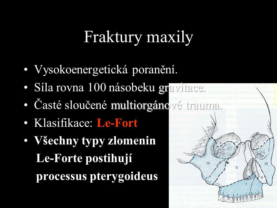 Fraktury maxily Vysokoenergetická poranění. gravitace.Síla rovna 100 násobeku gravitace. multiorgánové trauma.Časté sloučené multiorgánové trauma. Kla