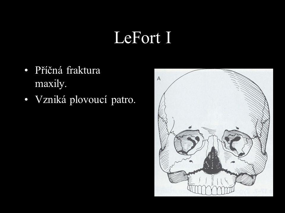 LeFort I Příčná fraktura maxily. Vzniká plovoucí patro.