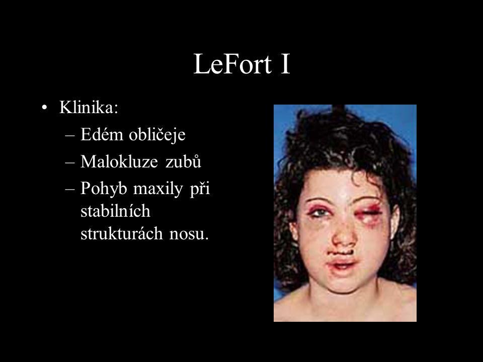 Klinika: –Edém obličeje –Malokluze zubů –Pohyb maxily při stabilních strukturách nosu. LeFort I
