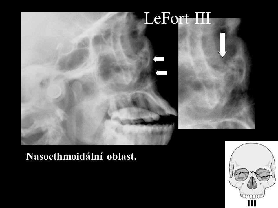 Nasoethmoidální oblast. LeFort III