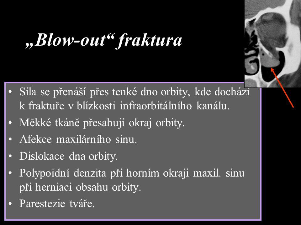 """""""Blow-out"""" fraktura Síla se přenáší přes tenké dno orbity, kde dochází k fraktuře v blízkosti infraorbitálního kanálu. Měkké tkáně přesahují okraj orb"""