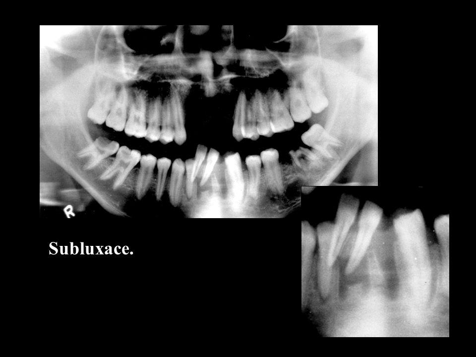 Patologická fraktura na podkladě rozlehlé apikální cysty.