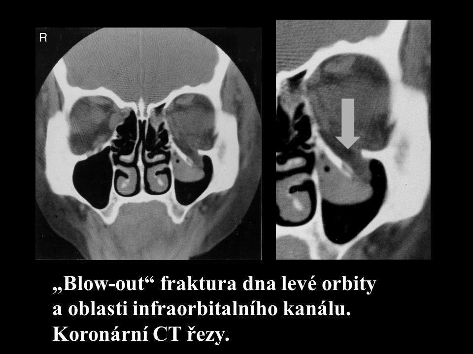 """""""Blow-out"""" fraktura dna levé orbity a oblasti infraorbitalního kanálu. Koronární CT řezy."""