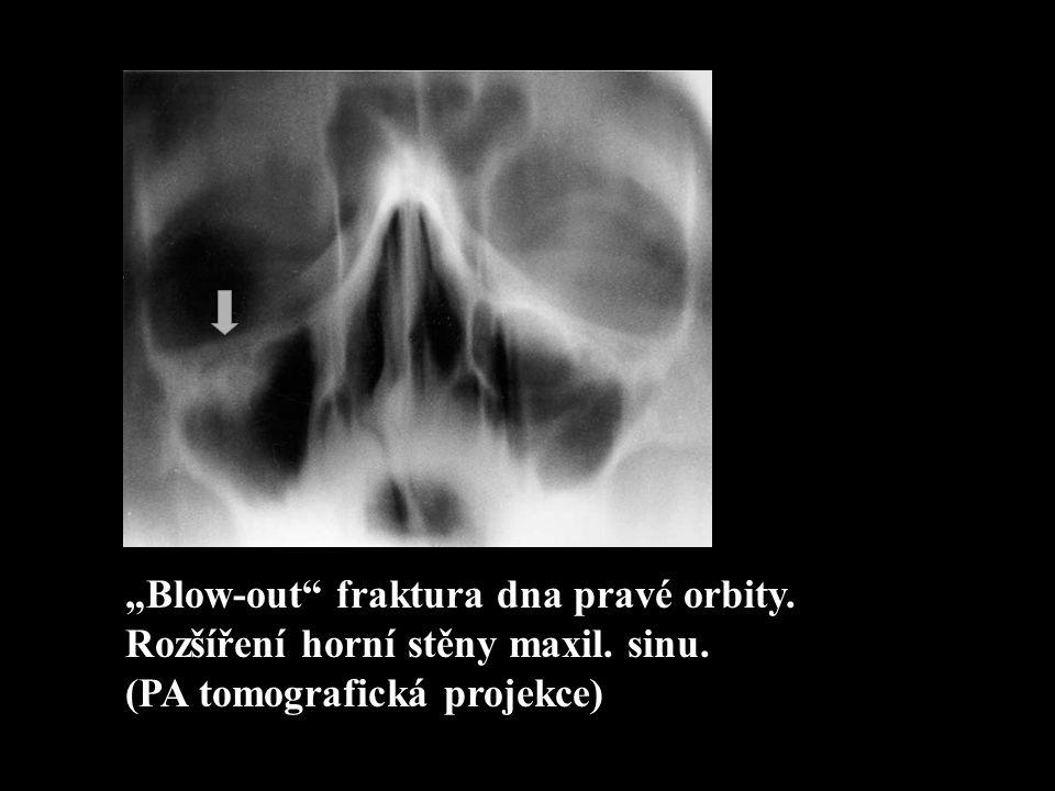 """""""Blow-out"""" fraktura dna pravé orbity. Rozšíření horní stěny maxil. sinu. (PA tomografická projekce)"""