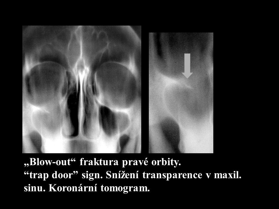 """""""Blow-out"""" fraktura pravé orbity. """"trap door"""" sign. Snížení transparence v maxil. sinu. Koronární tomogram."""