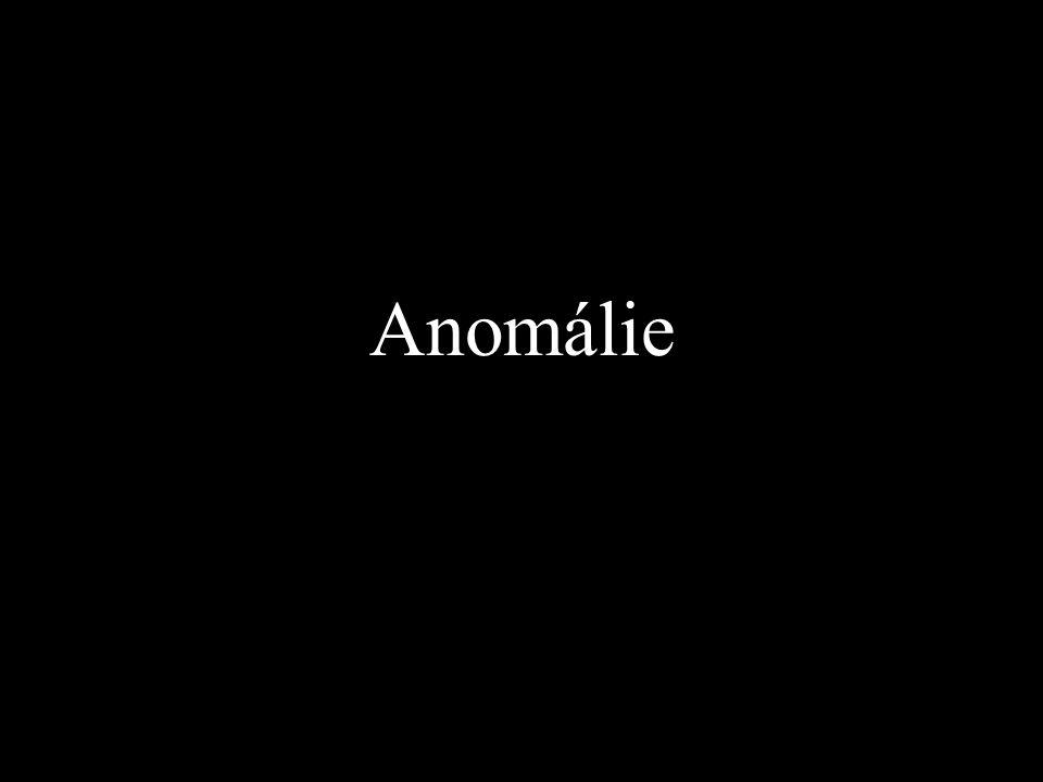 Anomálie