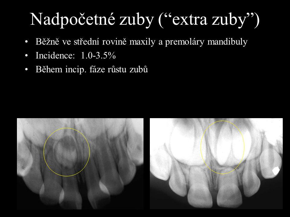 """Nadpočetné zuby (""""extra zuby"""") Běžně ve střední rovině maxily a premoláry mandibuly Incidence: 1.0-3.5% Během incip. fáze růstu zubů"""