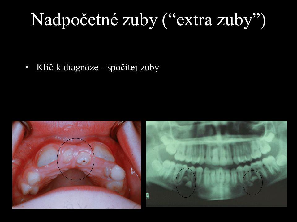 """Klíč k diagnóze - spočítej zuby Nadpočetné zuby (""""extra zuby"""")"""
