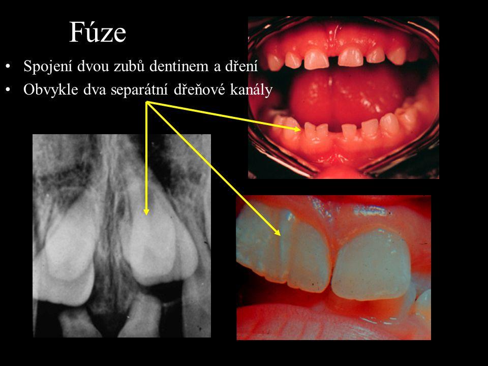 Fúze Spojení dvou zubů dentinem a dření Obvykle dva separátní dřeňové kanály