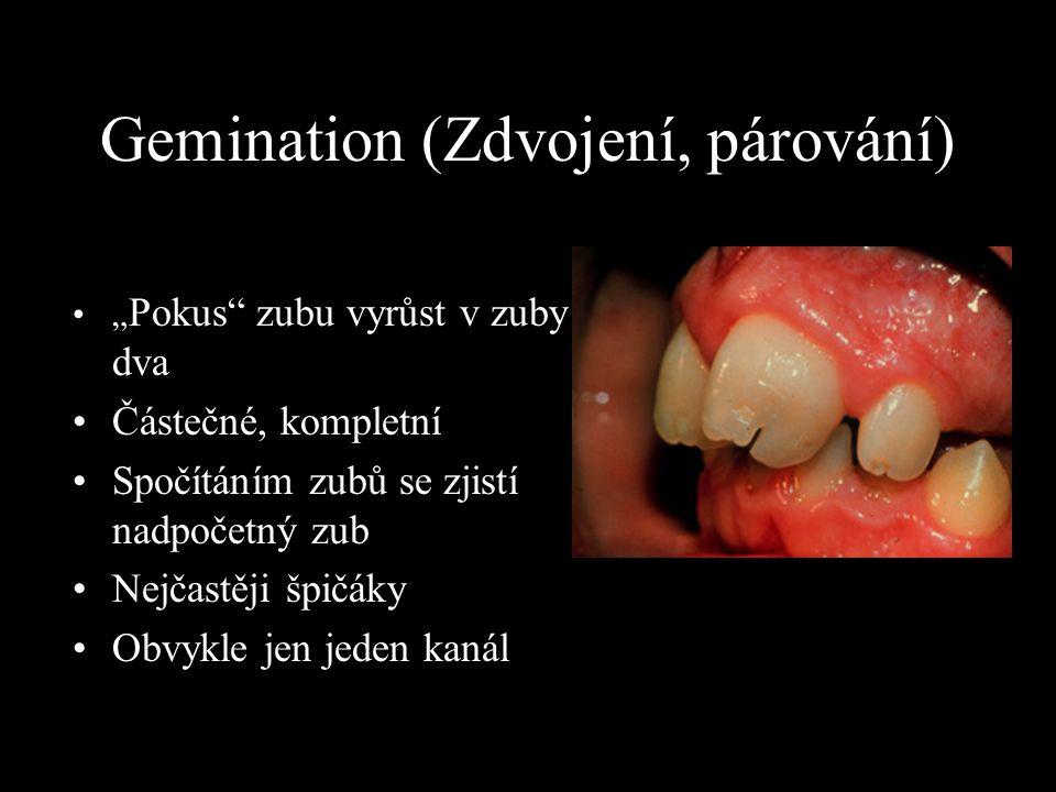"""Gemination (Zdvojení, párování) """" Pokus"""" zubu vyrůst v zuby dva Částečné, kompletní Spočítáním zubů se zjistí nadpočetný zub Nejčastěji špičáky Obvykl"""