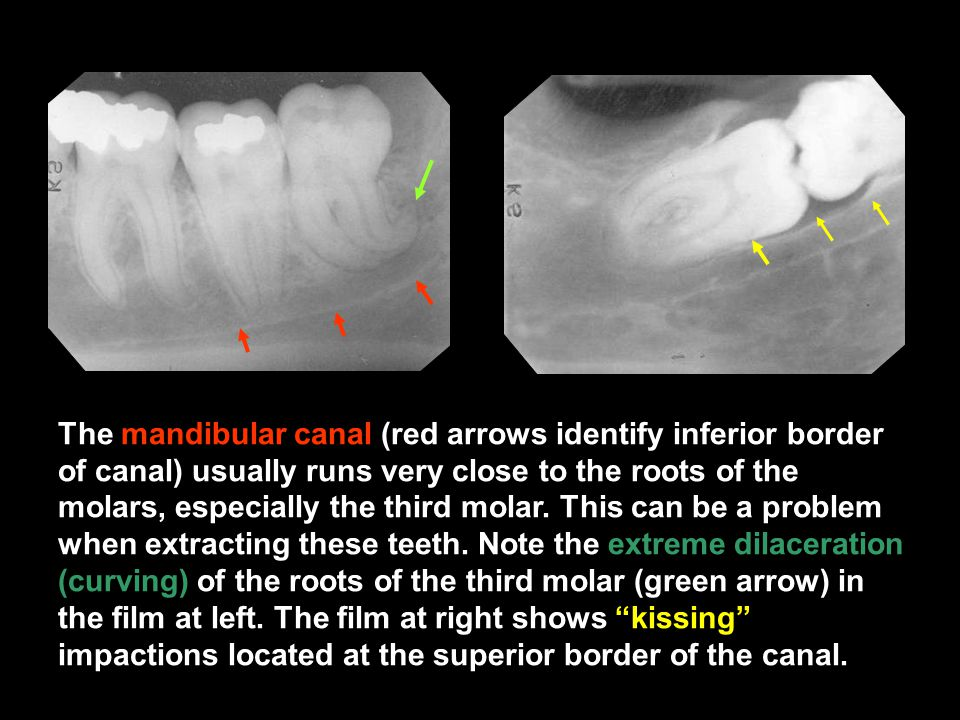 The mandibular canal (red arrows identify inferior border of canal) usually runs very close to the roots of the molars, especially the third molar. Th