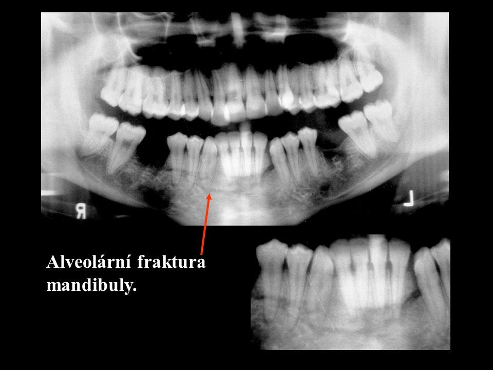 Fraktury: - alveolární - mandibuly (molár)