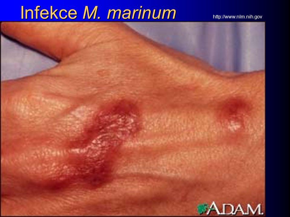 Infekce M. marinum http://www.nlm.nih.gov