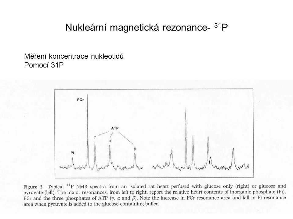 Nukleární magnetická rezonance- 31 P Měření koncentrace nukleotidů Pomocí 31P