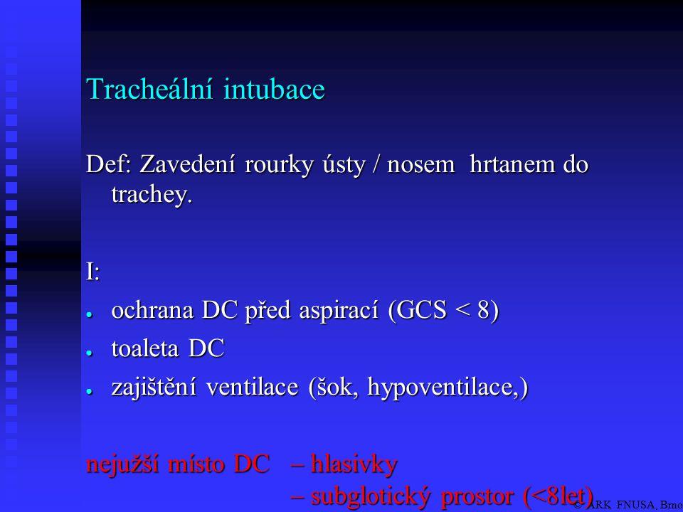 © ARK FNUSA, Brno Provedení OTI: připrav pomůcky, (ventiluj) poloha pacienta anestezie / bezvědomí přímá laryngoskopie zavedení TR těsnící manžeta