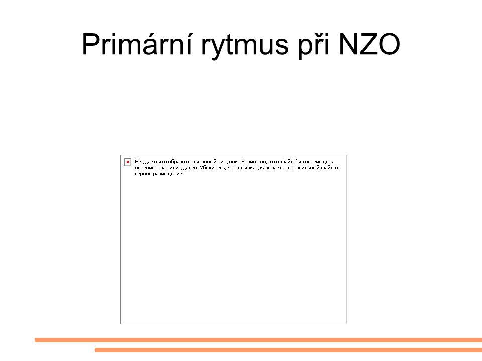 Primární rytmus při NZO