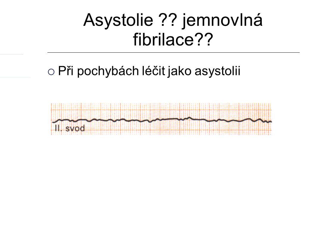 Asystolie jemnovlná fibrilace  Při pochybách léčit jako asystolii