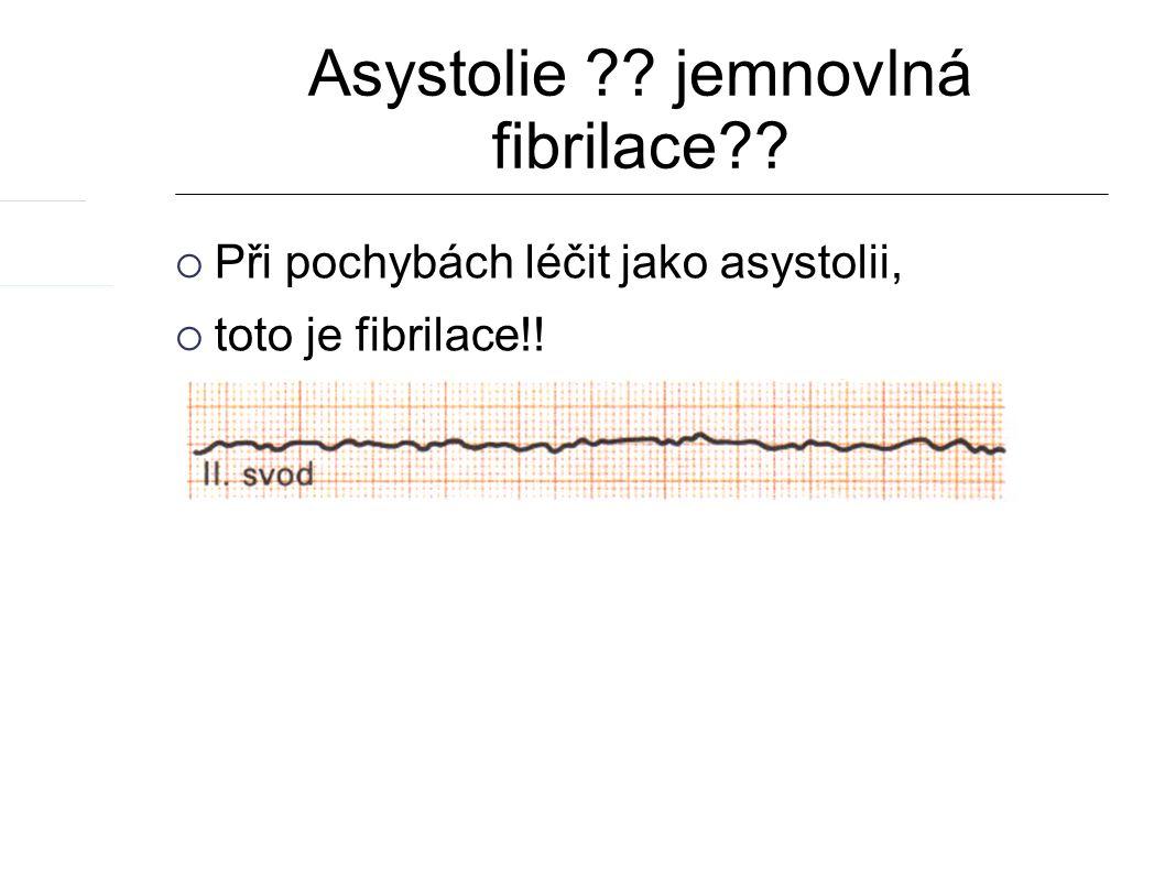 Asystolie ?? jemnovlná fibrilace??  Při pochybách léčit jako asystolii,  toto je fibrilace!!